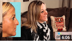 Orlando Rhinoplasty Patient Shares Her Experience