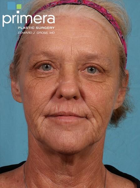face wrinkles1