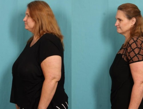 Donna's Journey: Down 64 Pounds in Less Than Six Months