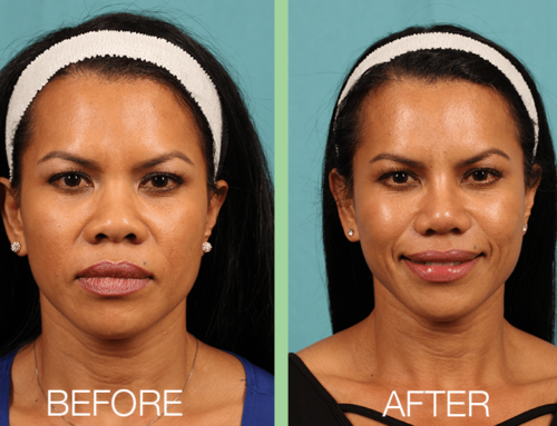 Functional Rhinoplasty Helps Patient Live, Feel and Breathe Better